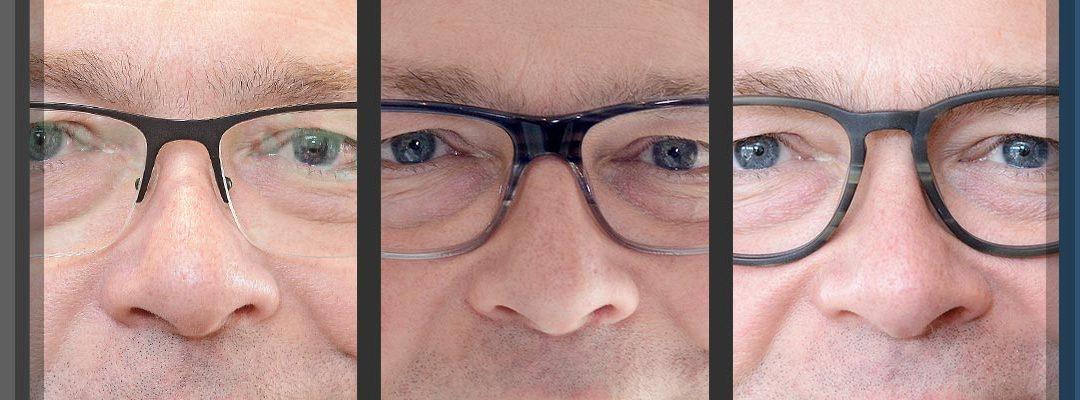 Nasensteg-Varianten beeinflussen Nasenlänge- und breite!
